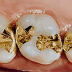 teeth with gold fillings