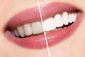 ap24 toothpaste before and after picture